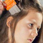 Consejos para evitar los piojos en verano